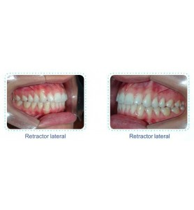 Retractor Lateral /Ref:...